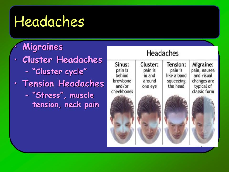 Headaches Migraines Cluster Headaches Tension Headaches