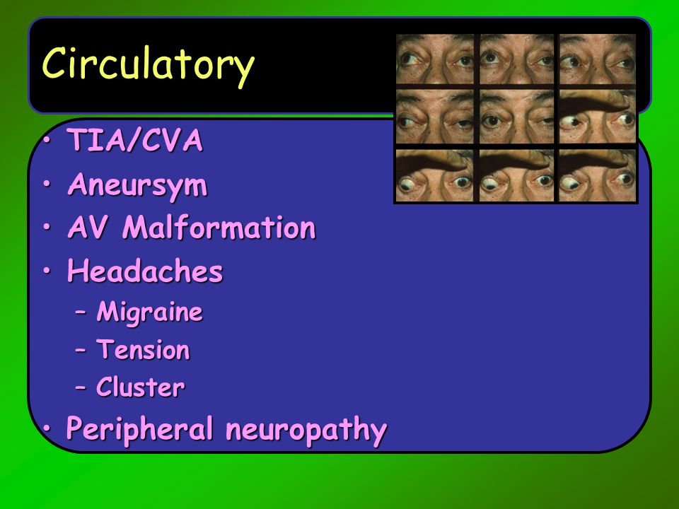 Circulatory TIA/CVA Aneursym AV Malformation Headaches