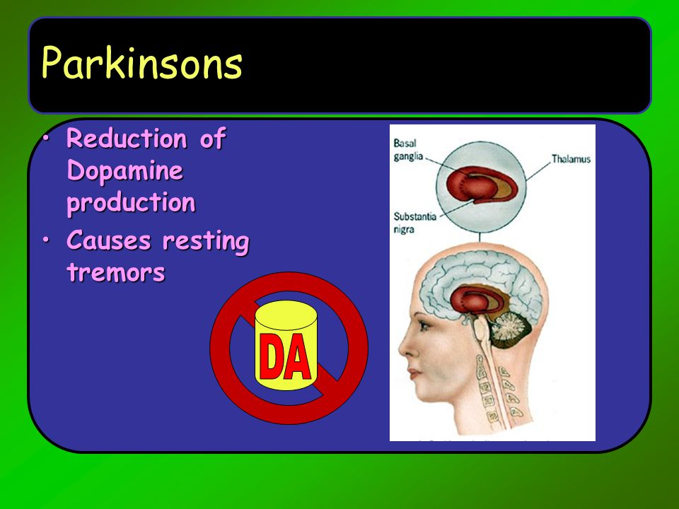 Parkinsons Reduction of Dopamine production Causes resting tremors DA