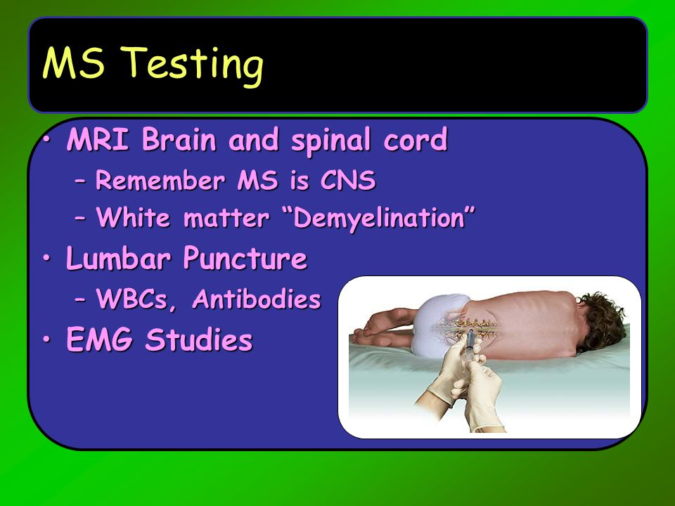 MS Testing MRI Brain and spinal cord Lumbar Puncture EMG Studies