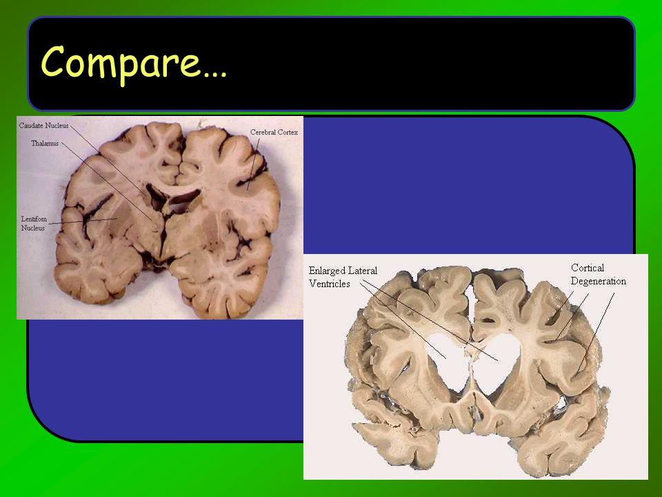 Compare…