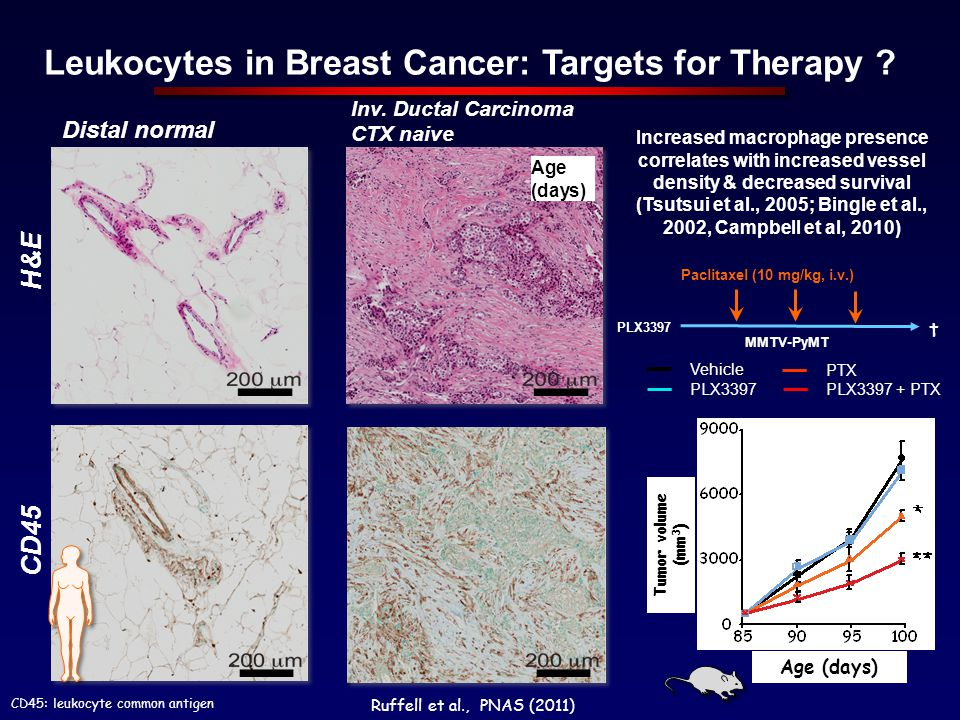 Leukocytes in Breast Cancer: Targets for Therapy
