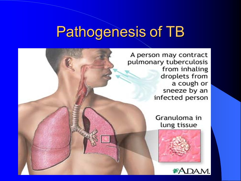 Pathogenesis of TB