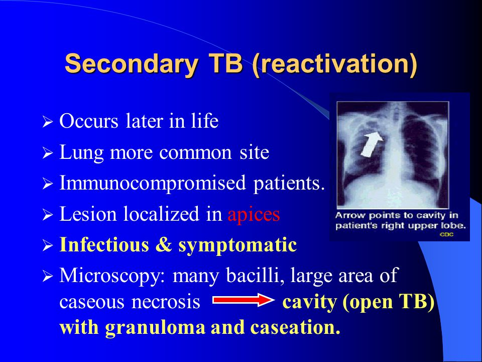 Secondary TB (reactivation)