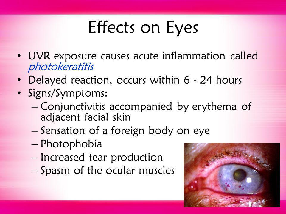 Effects on Eyes UVR exposure causes acute inflammation called photokeratitis. Delayed reaction, occurs within 6 - 24 hours.