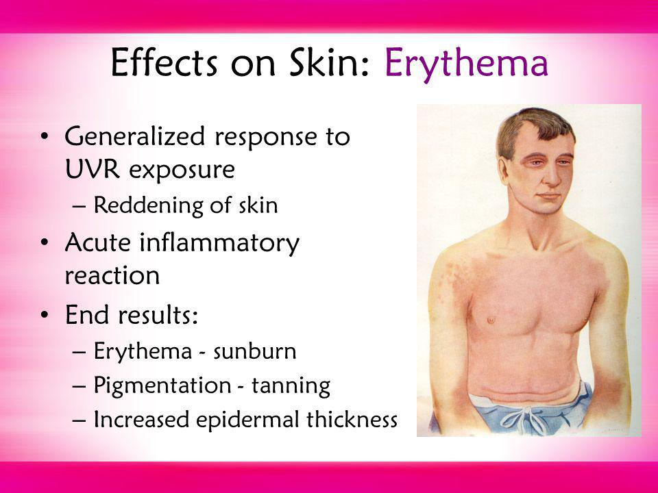 Effects on Skin: Erythema