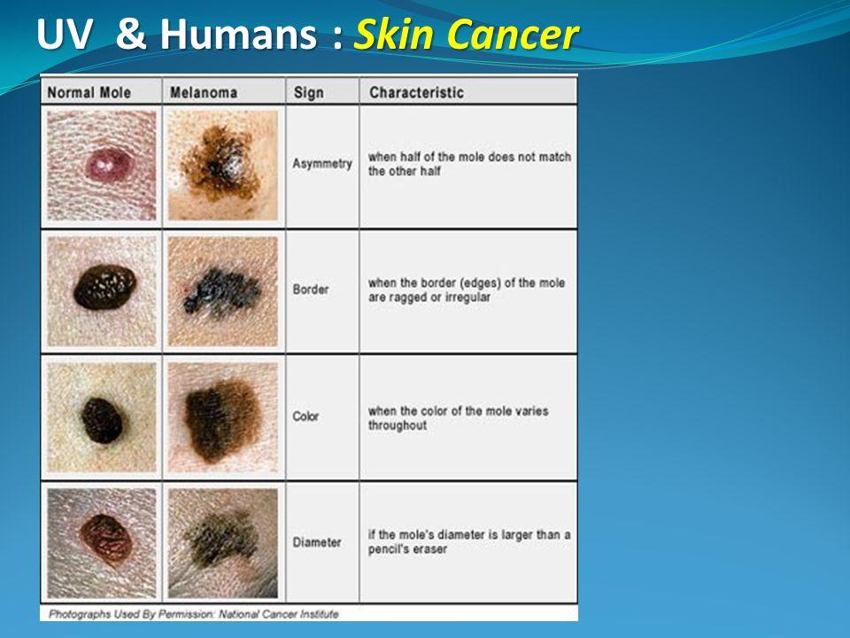 UV & Humans : Skin Cancer