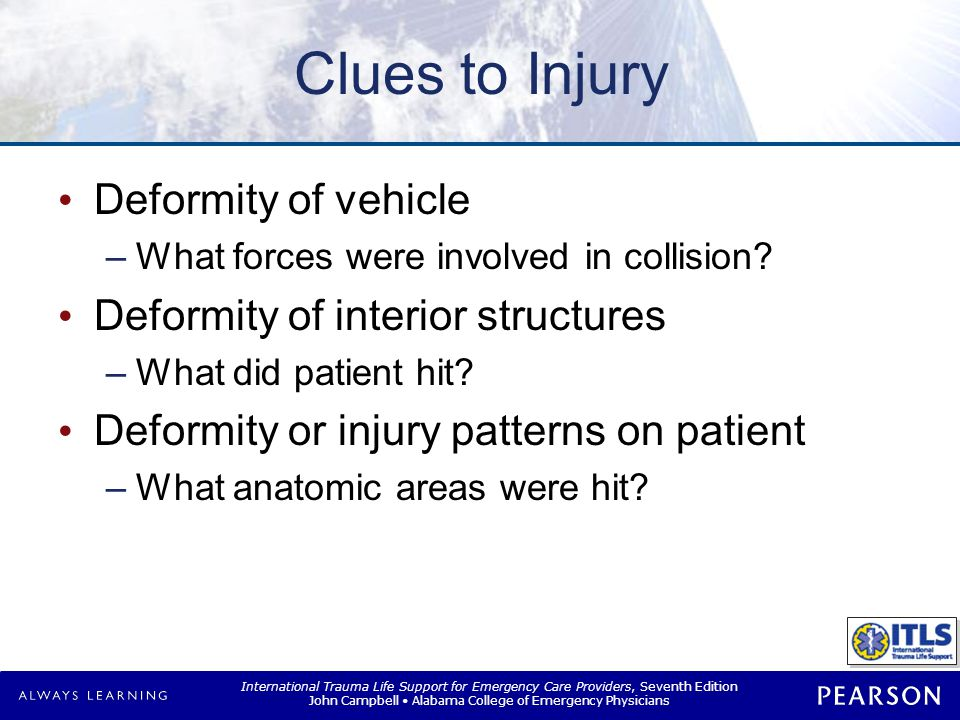 Common Collisions Common types Frontal-impact Lateral-impact