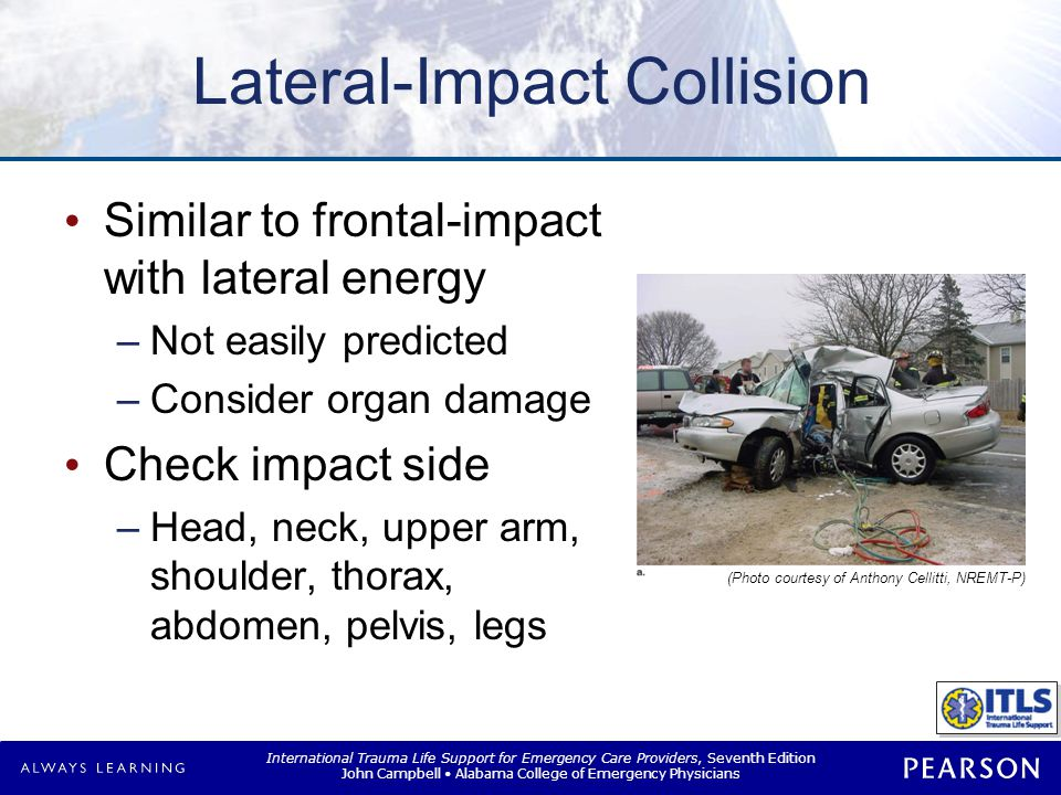Rear-Impact Collision
