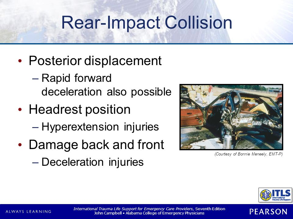 Rollover Collision Multiple impacts Axial-loading injuries Ejection