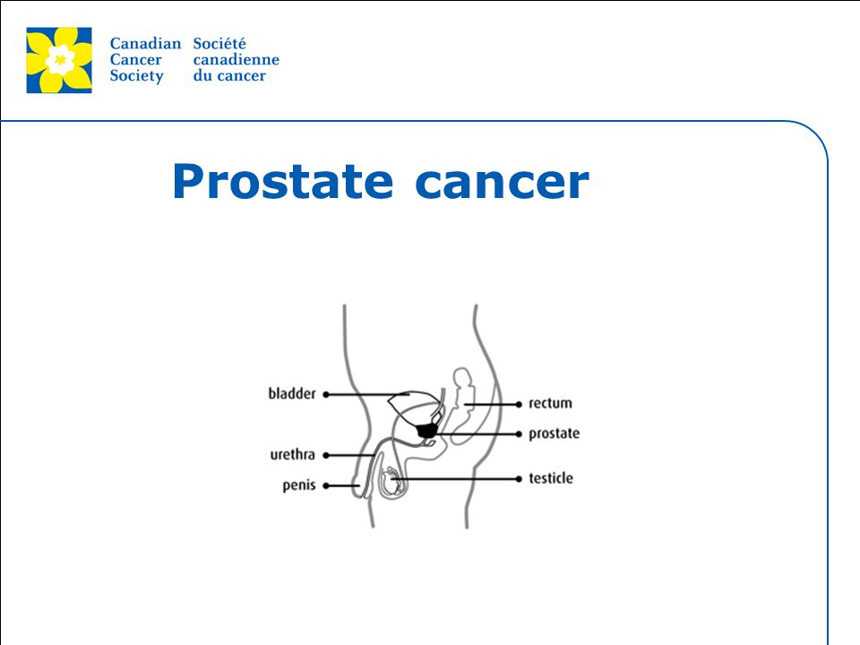 Prostate cancer I want to touch on Prostate cancer for minute.