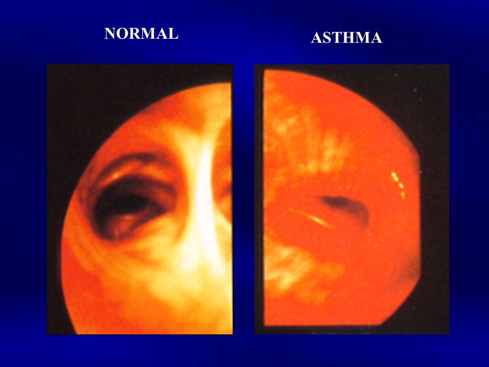 NORMAL ASTHMA