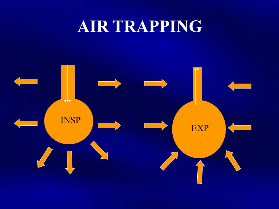AIR TRAPPING INSP EXP