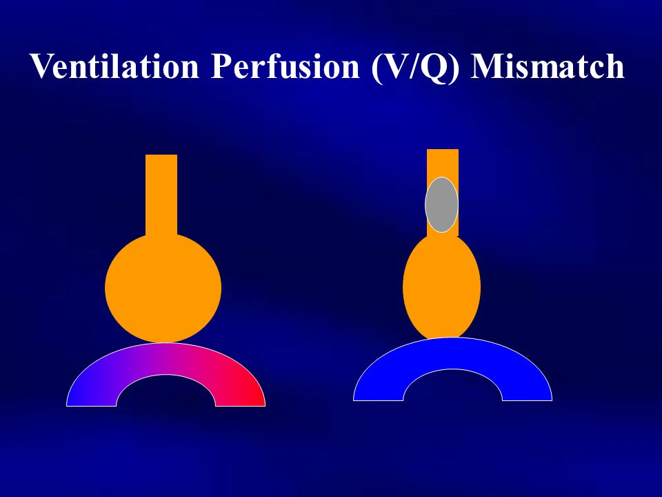 Ventilation Perfusion (V/Q) Mismatch