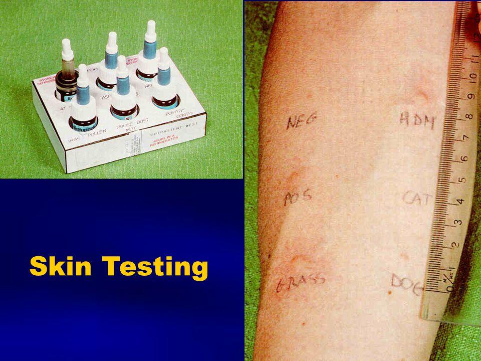 Skin Testing