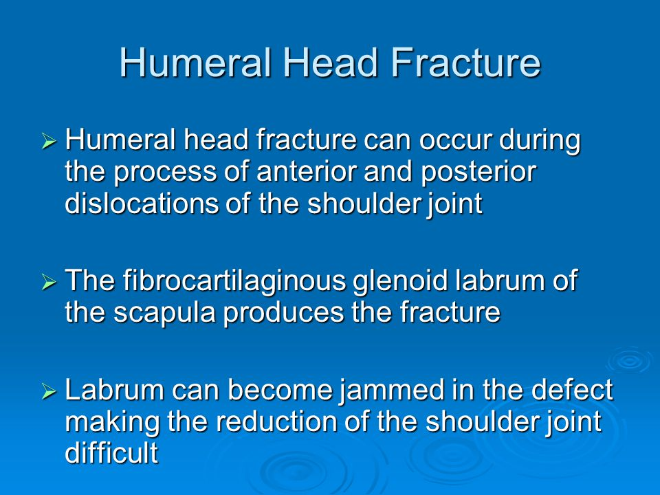 Humeral Head Fracture Humeral head fracture can occur during the process of anterior and posterior dislocations of the shoulder joint.