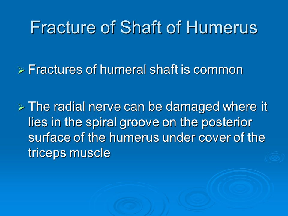 Fracture of Shaft of Humerus