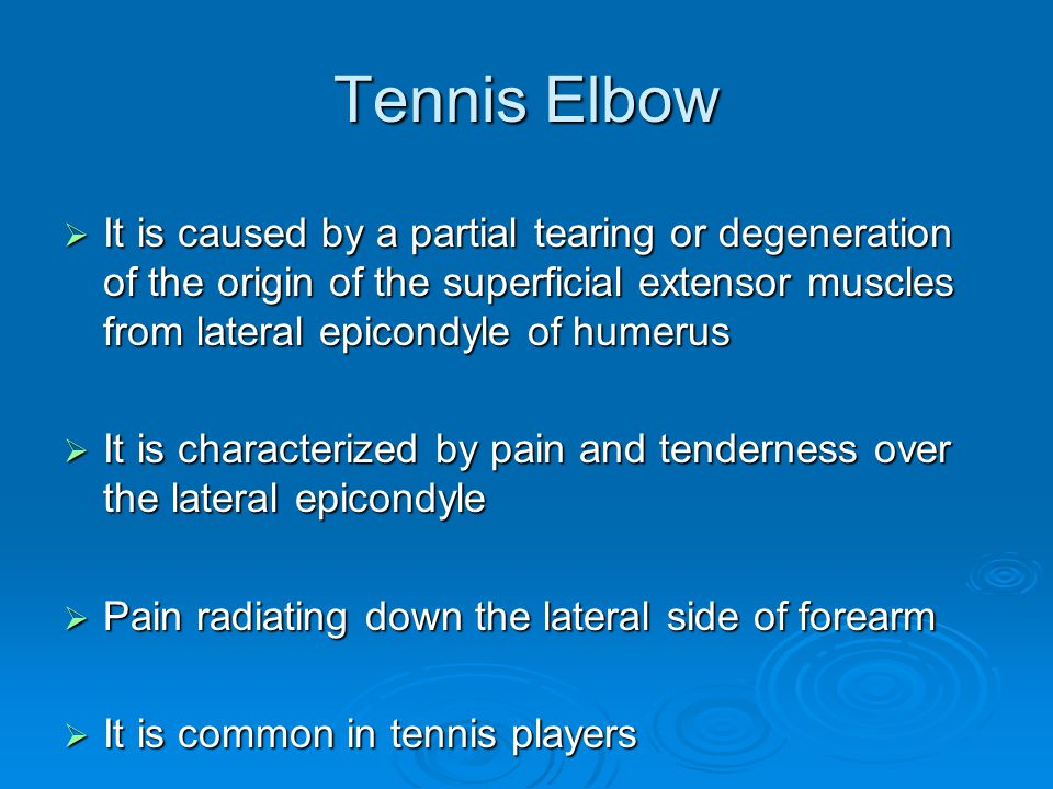 Tennis Elbow It is caused by a partial tearing or degeneration of the origin of the superficial extensor muscles from lateral epicondyle of humerus.