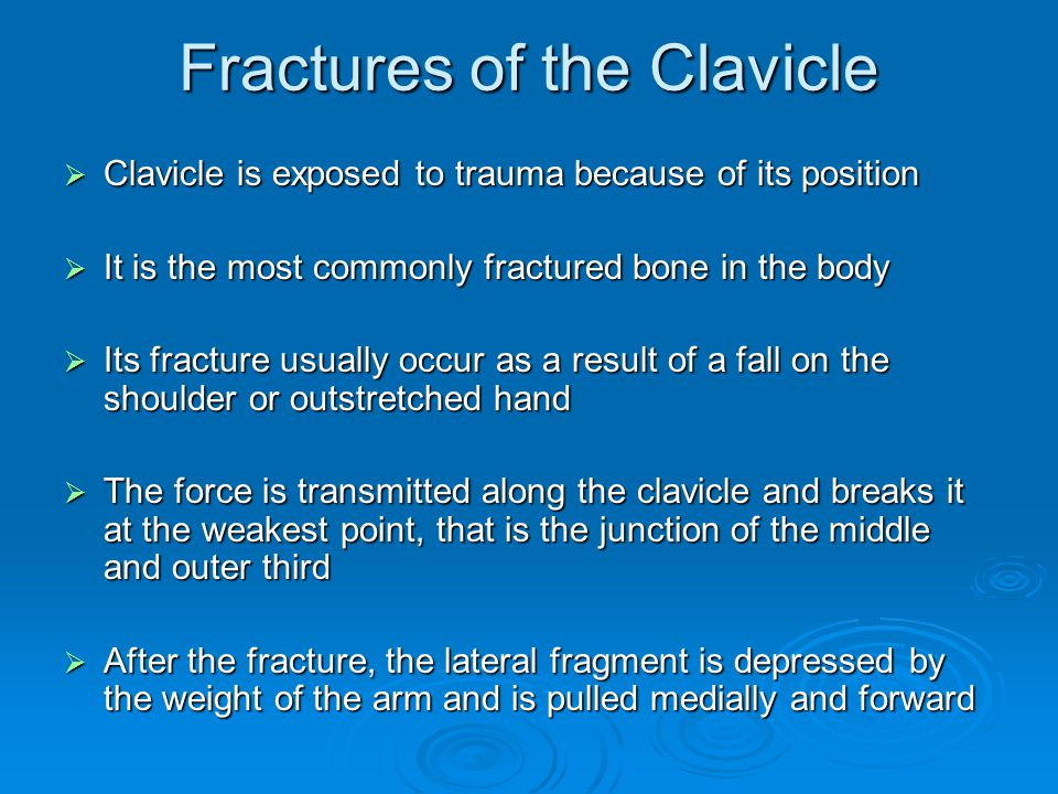 Fractures of the Clavicle