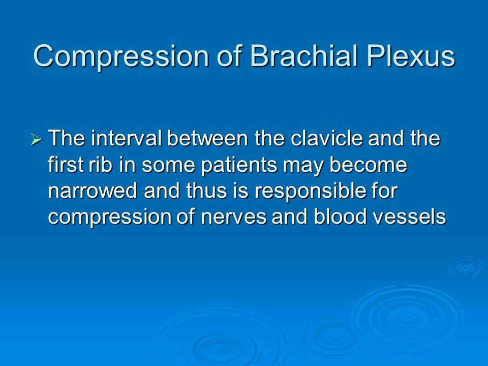 Compression of Brachial Plexus