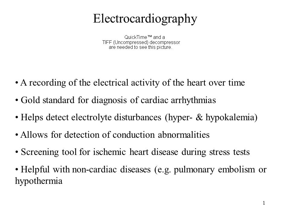 Electrocardiography A recording of the electrical activity of the heart over time. Gold standard for diagnosis of cardiac arrhythmias.