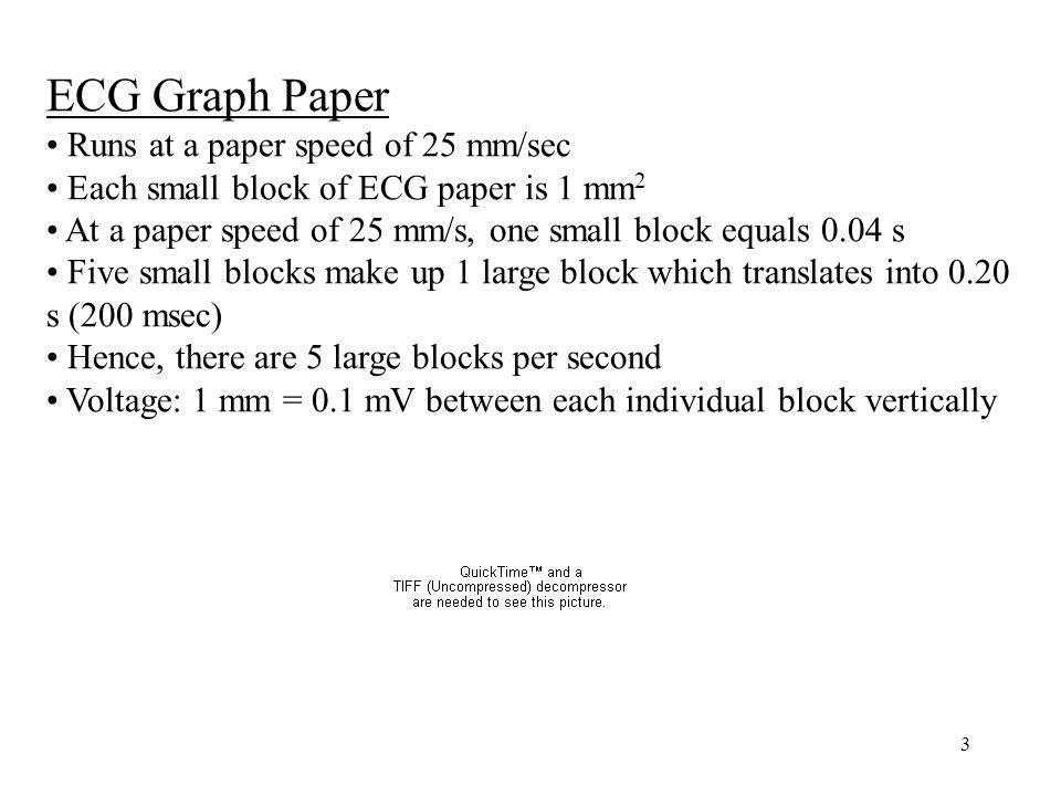 ECG Graph Paper Runs at a paper speed of 25 mm/sec