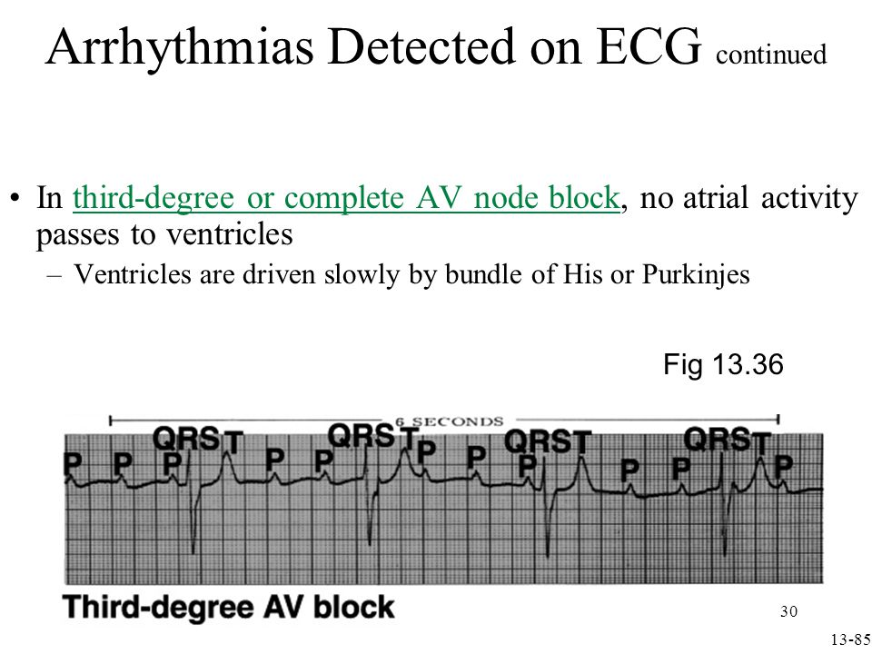 Arrhythmias Detected on ECG continued