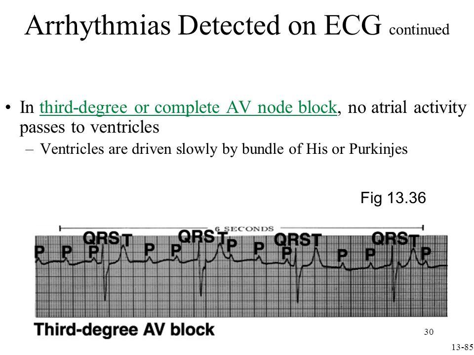 Arrhythmias Detected on ECG continued