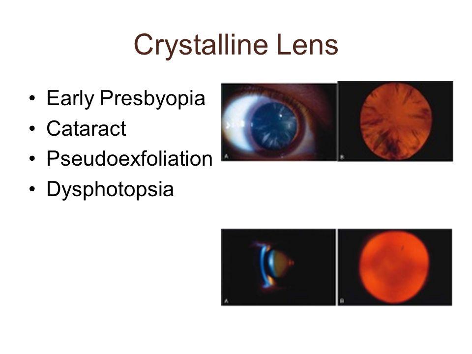 Crystalline Lens Early Presbyopia Cataract Pseudoexfoliation
