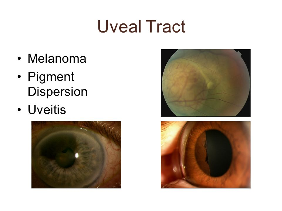 Uveal Tract Melanoma Pigment Dispersion Uveitis