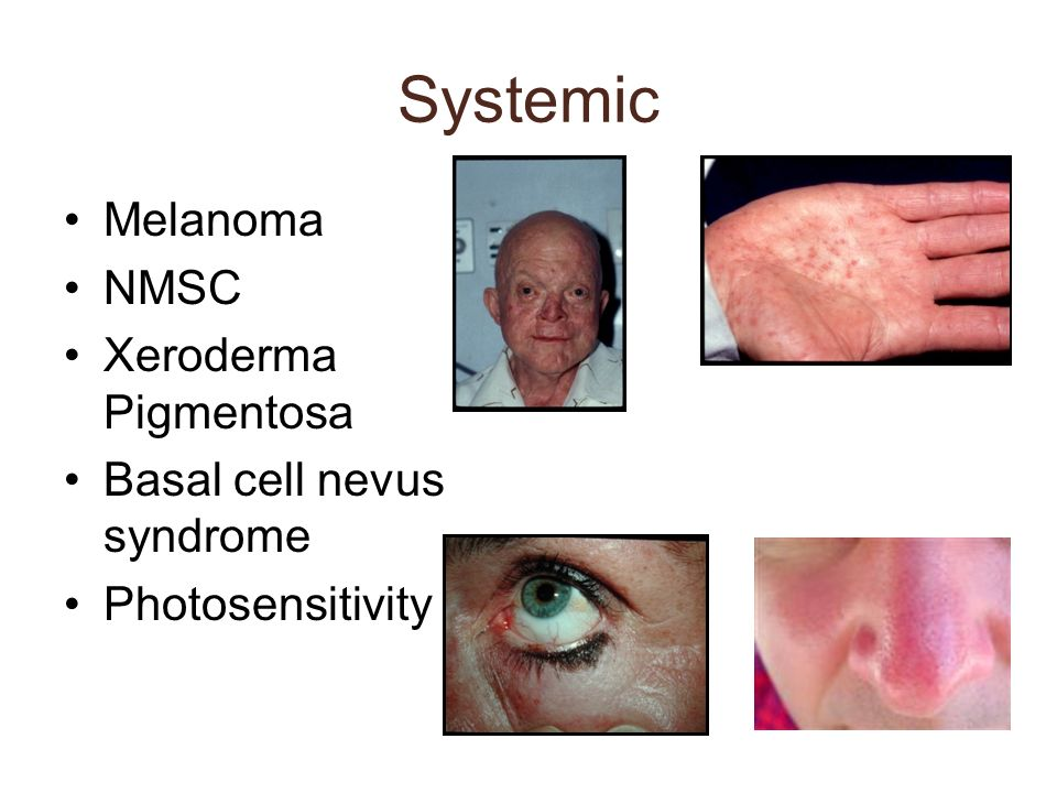 Systemic Melanoma NMSC Xeroderma Pigmentosa Basal cell nevus syndrome