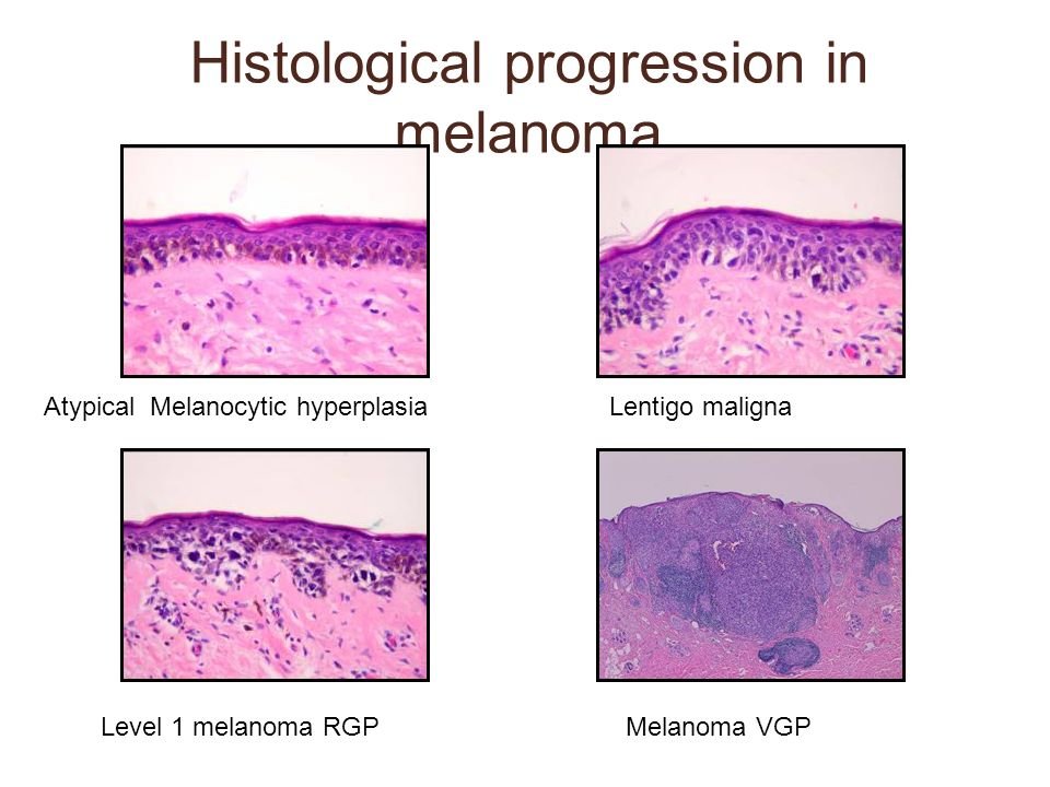 Histological progression in melanoma