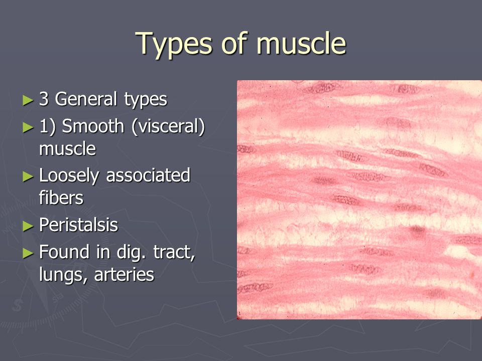 Types of muscle 3 General types 1) Smooth (visceral) muscle