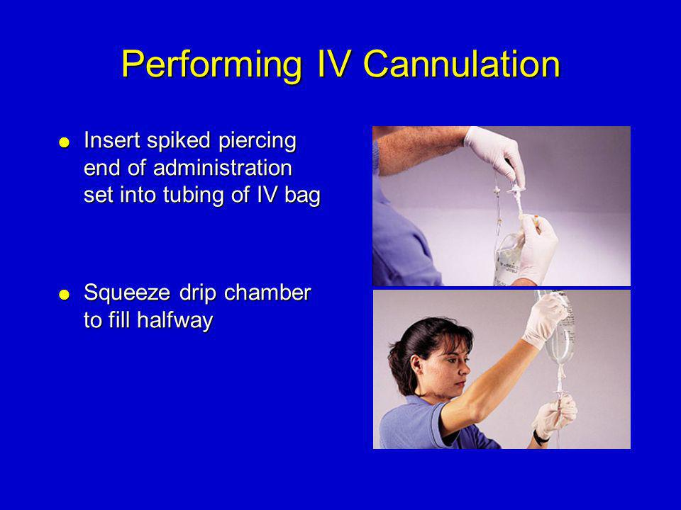 Performing IV Cannulation