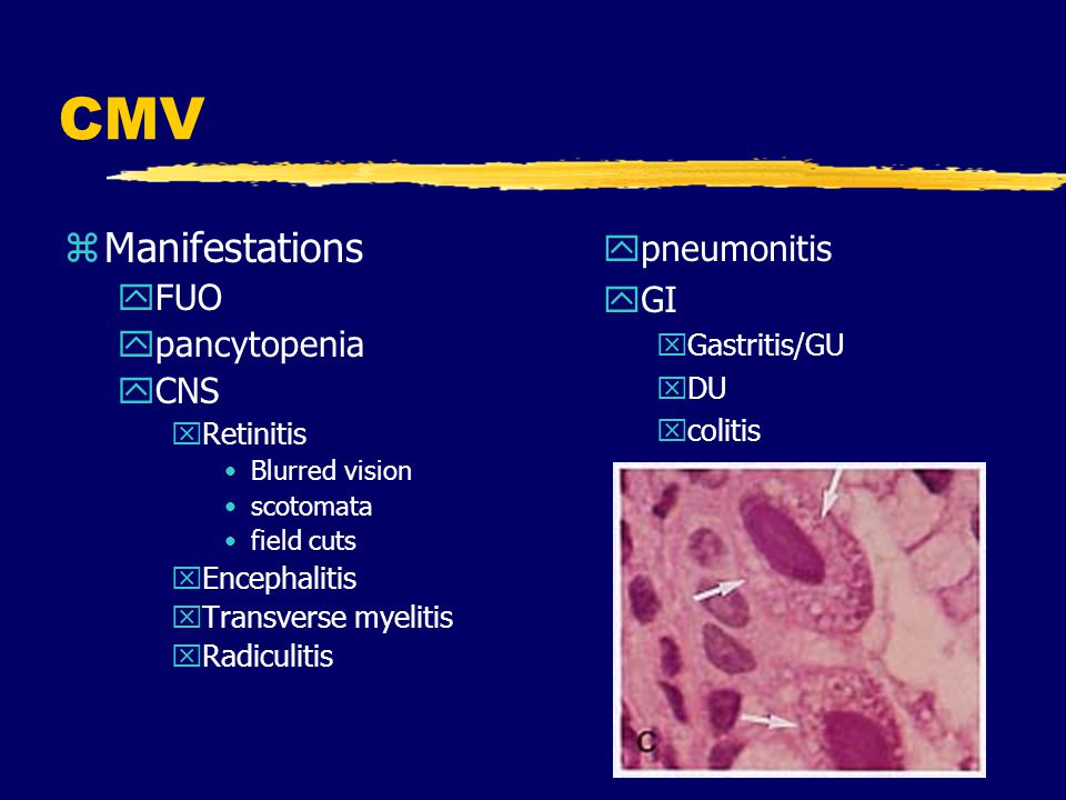 CMV Manifestations pneumonitis FUO GI pancytopenia CNS Gastritis/GU DU