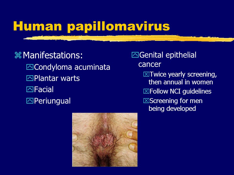 Human papillomavirus Manifestations: Genital epithelial cancer
