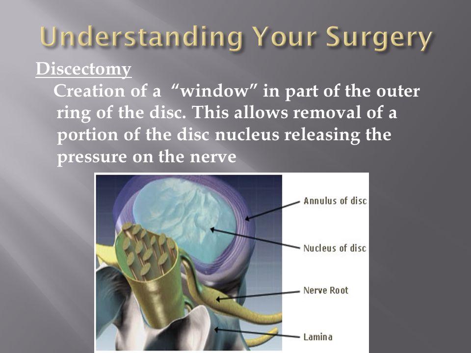 Understanding Your Surgery