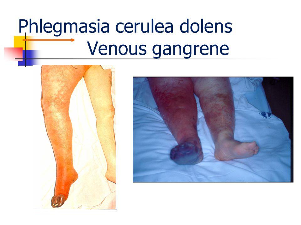Phlegmasia cerulea dolens Venous gangrene