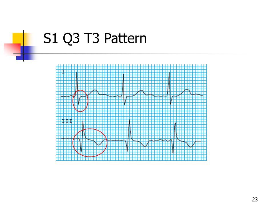 S1 Q3 T3 Pattern