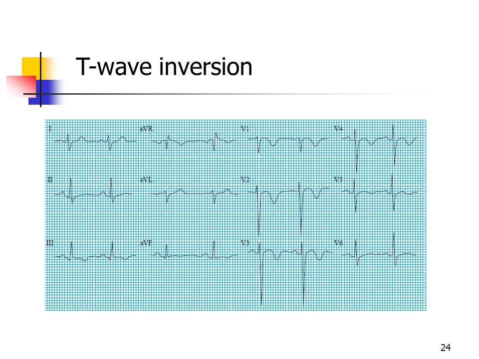 T-wave inversion