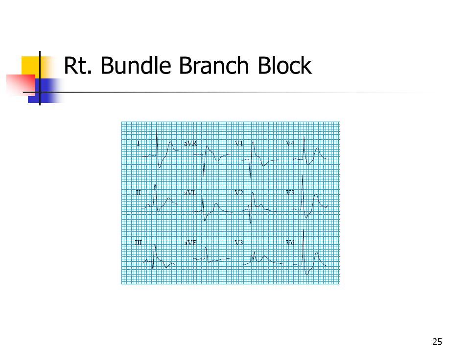 Rt. Bundle Branch Block