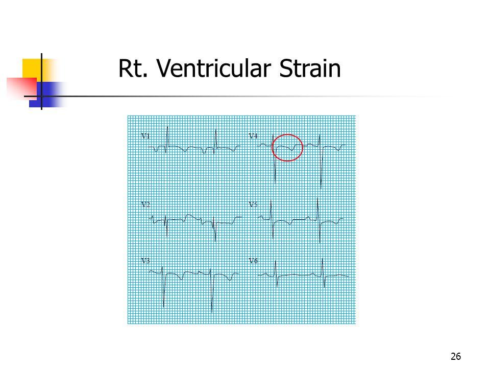 Rt. Ventricular Strain