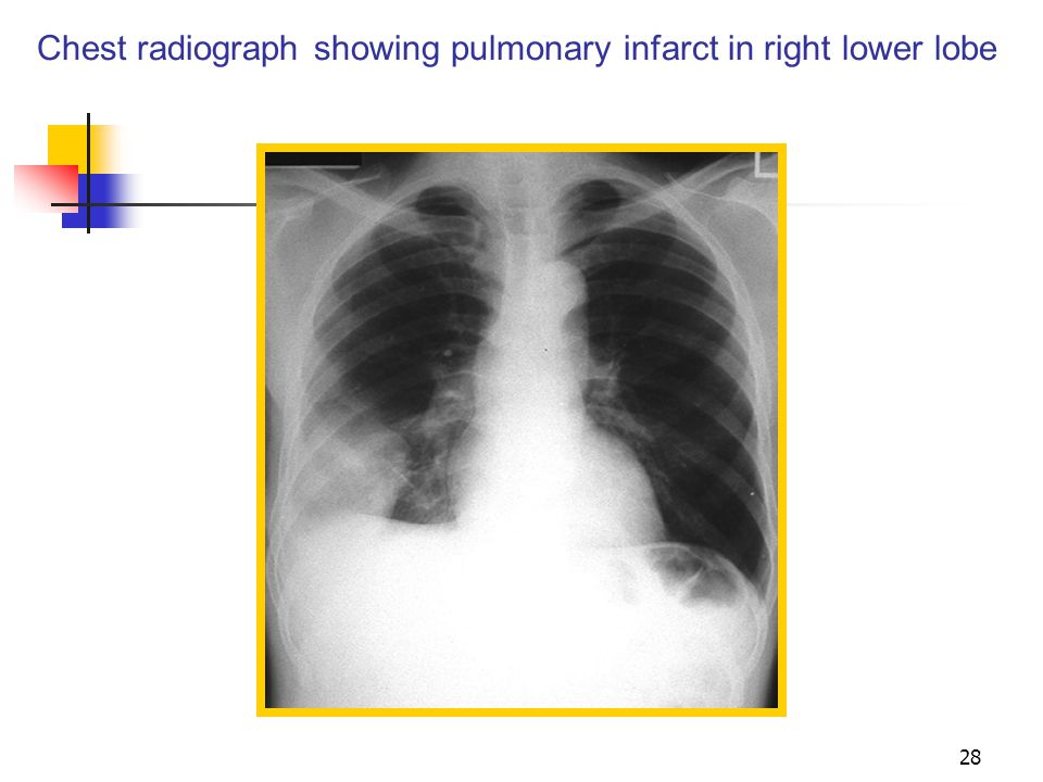 Chest radiograph showing pulmonary infarct in right lower lobe