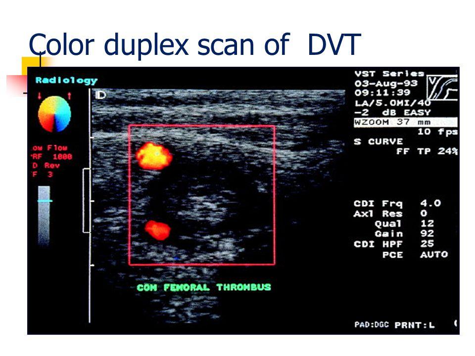 Color duplex scan of DVT