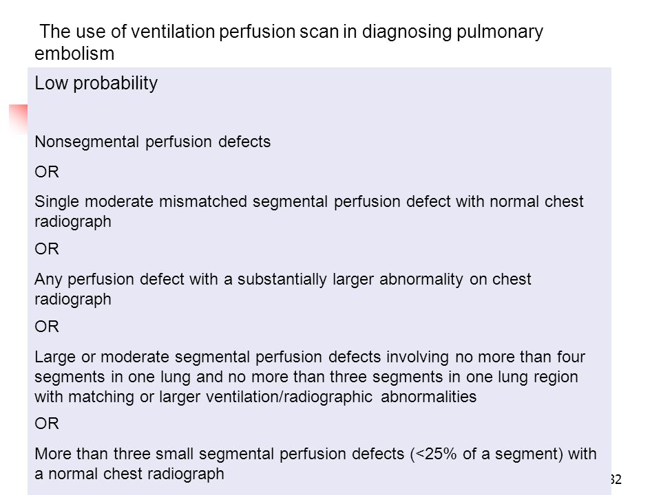 The use of ventilation perfusion scan in diagnosing pulmonary embolism