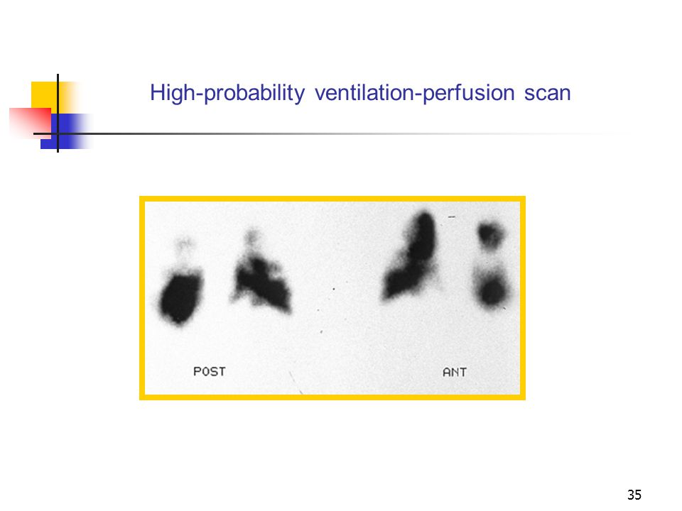 High-probability ventilation-perfusion scan