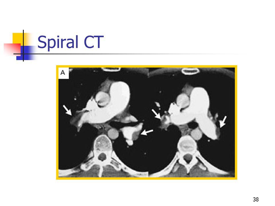 Spiral CT