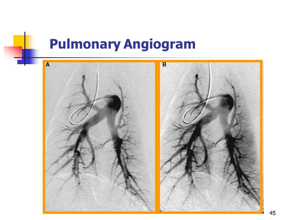Pulmonary Angiogram