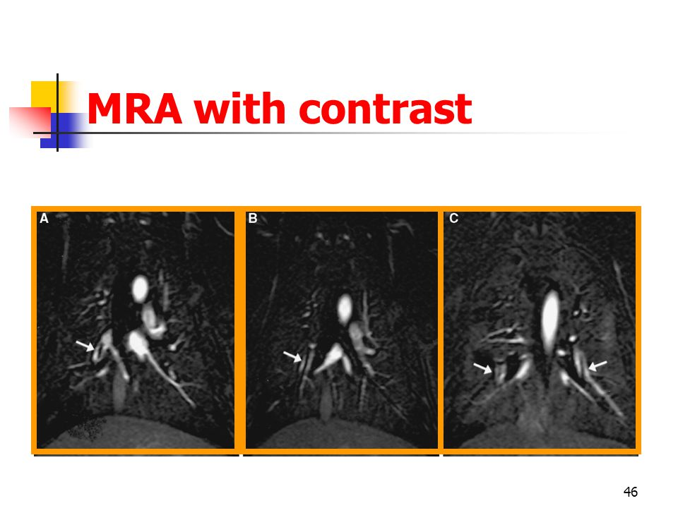 MRA with contrast
