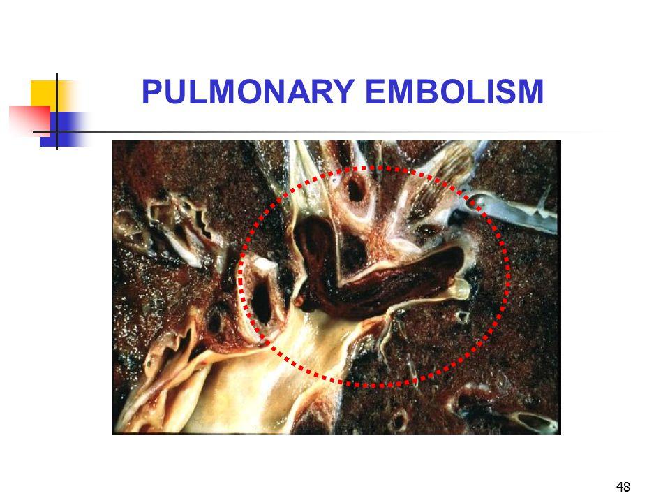 PULMONARY EMBOLISM 23